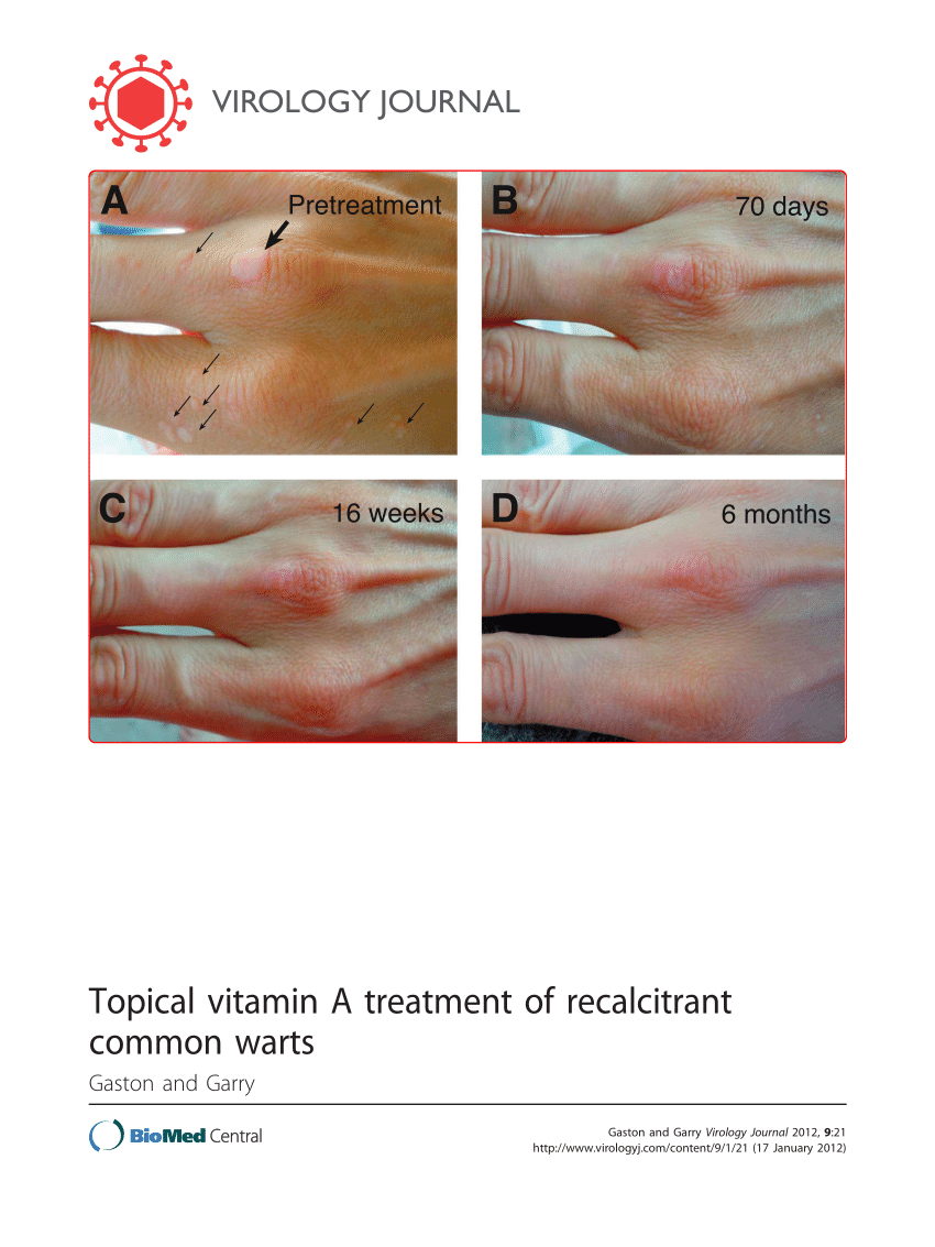 warts treatment topical