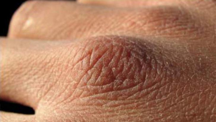 human papillomavirus review article asa numiti paraziti benefici