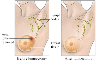 intraductal papilloma lumpectomy)