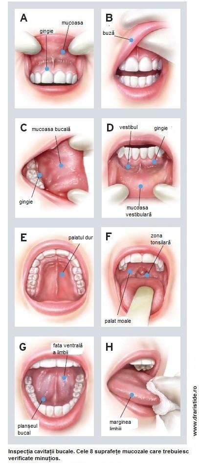 cancer la buze tratament