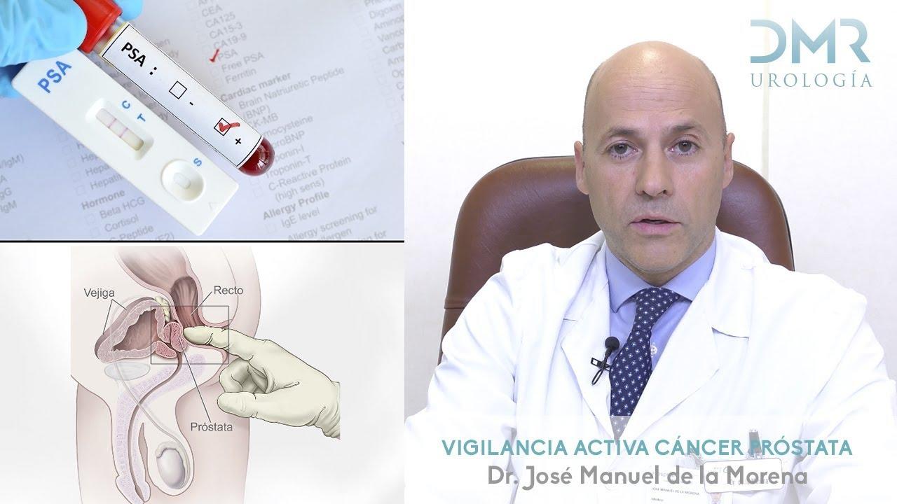 Cancer colorectal stade 4 esperance de vie, Papiloma nasal tomografia
