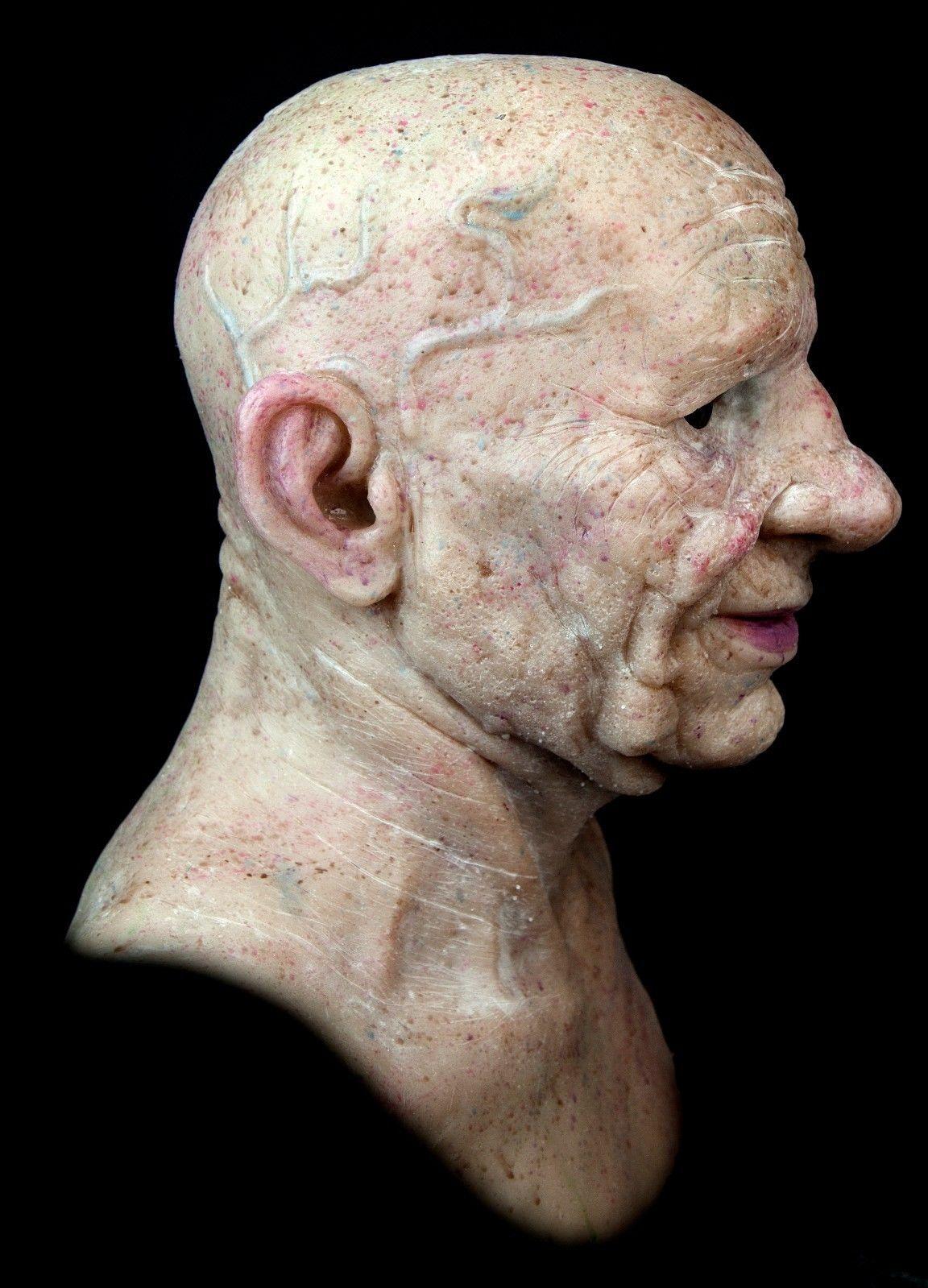 warts on old skin wart treatment ayurvedic medicine