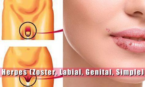 diferencia entre papiloma y herpes genital