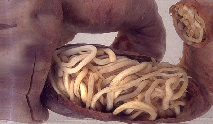 crevni paraziti kod ljudi