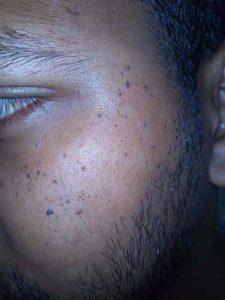 papillomavirus on face