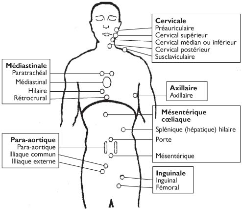 cancer mamar anadolu