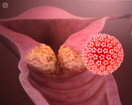 hpv virus causes and symptoms