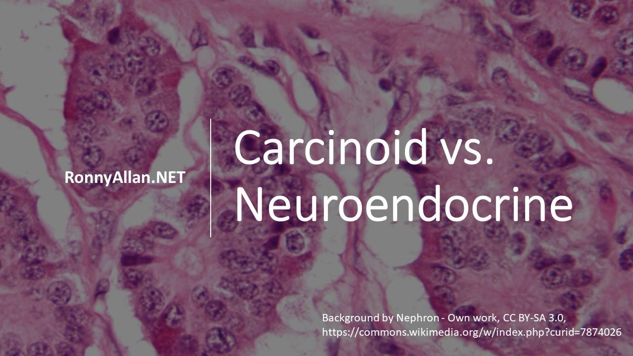 Neuroendocrine cancer with carcinoid tumors. Virus hpv kanker serviks