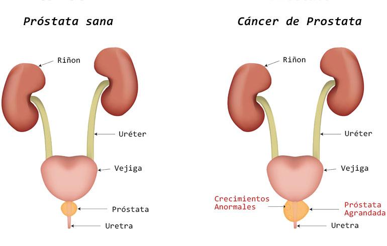 cancer de prostata la