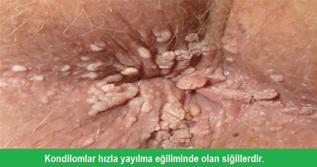 condyloma acuminata neden olur)