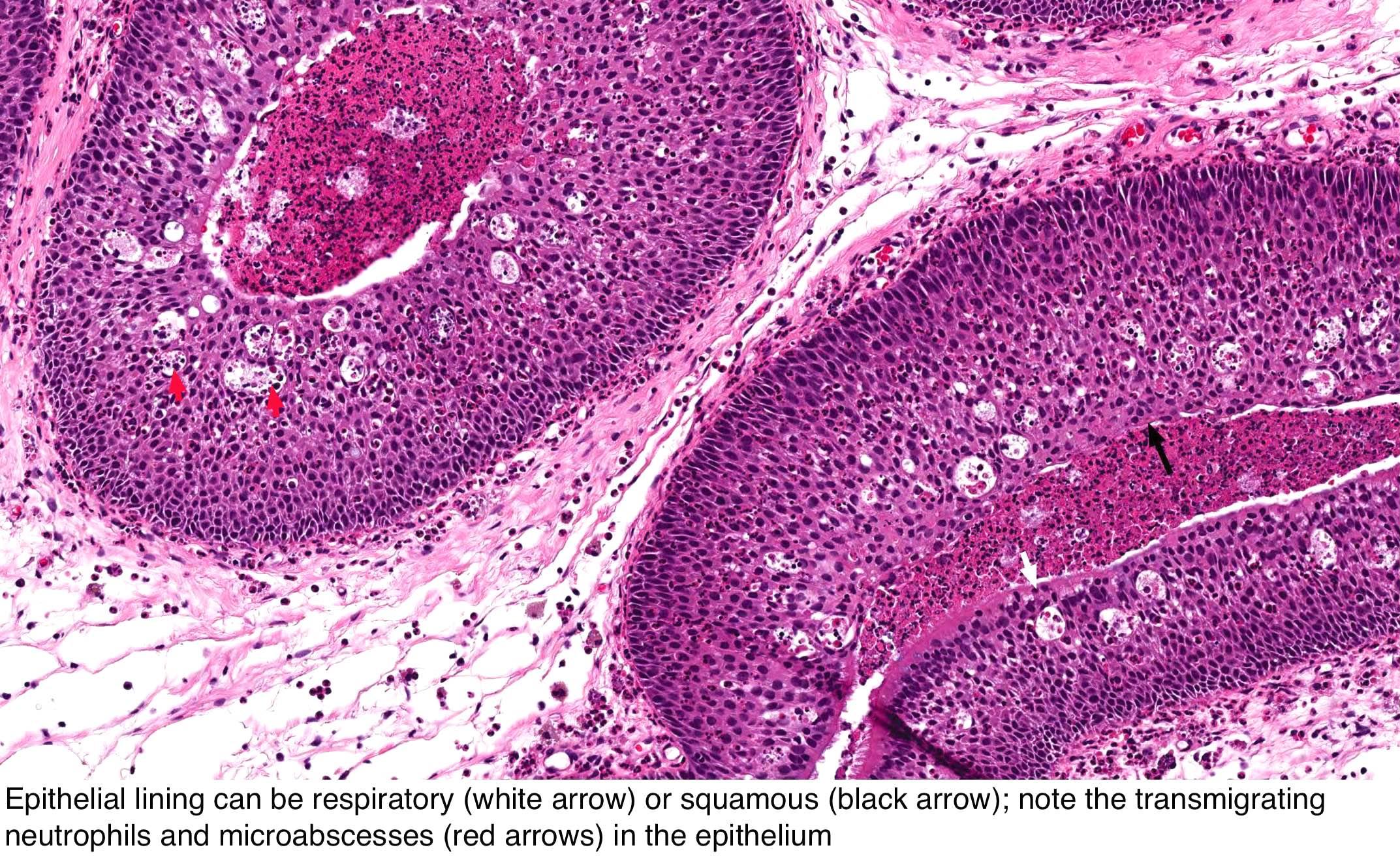 What causes nasal papilloma