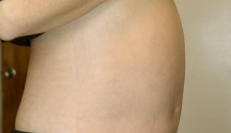 Pancreatic cancer abdominal fluid. Posts navigation