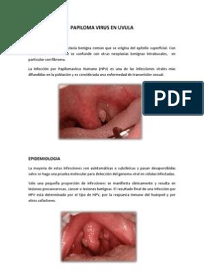 papiloma de uvula