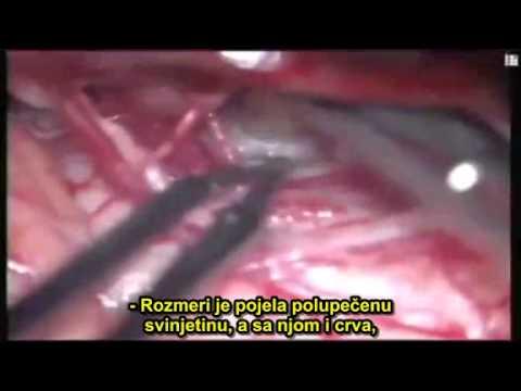 Paraziti u tijelu - info-tecuci.ro