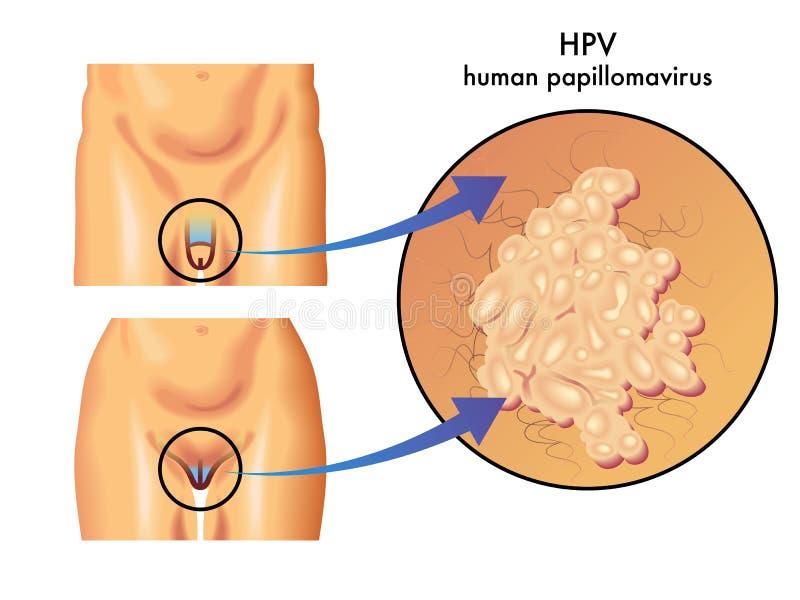 papillomavirus in italiano