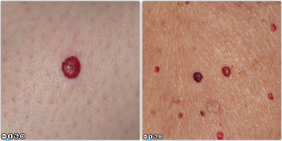 papilloma vs skin cancer