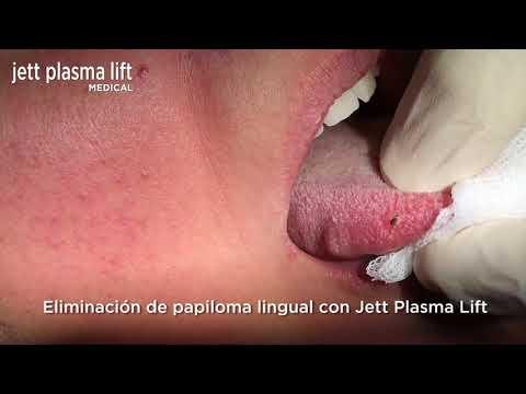 Cirugia de papiloma lingual. Compendiu de Chirurgie Oro Maxilo Faciala Alexandru Bucur
