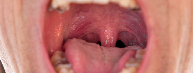 Cancer bucal y de garganta, Sintomas cancer garganta por virus papiloma humano