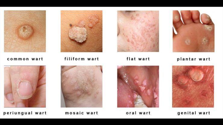 cancerul simptome