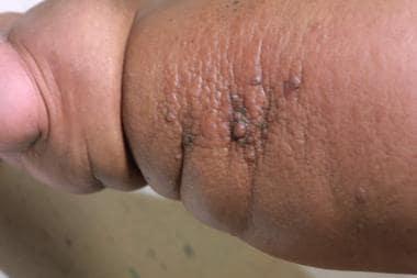 lymphatic papillomatosis treatment a alerga cu oamenii