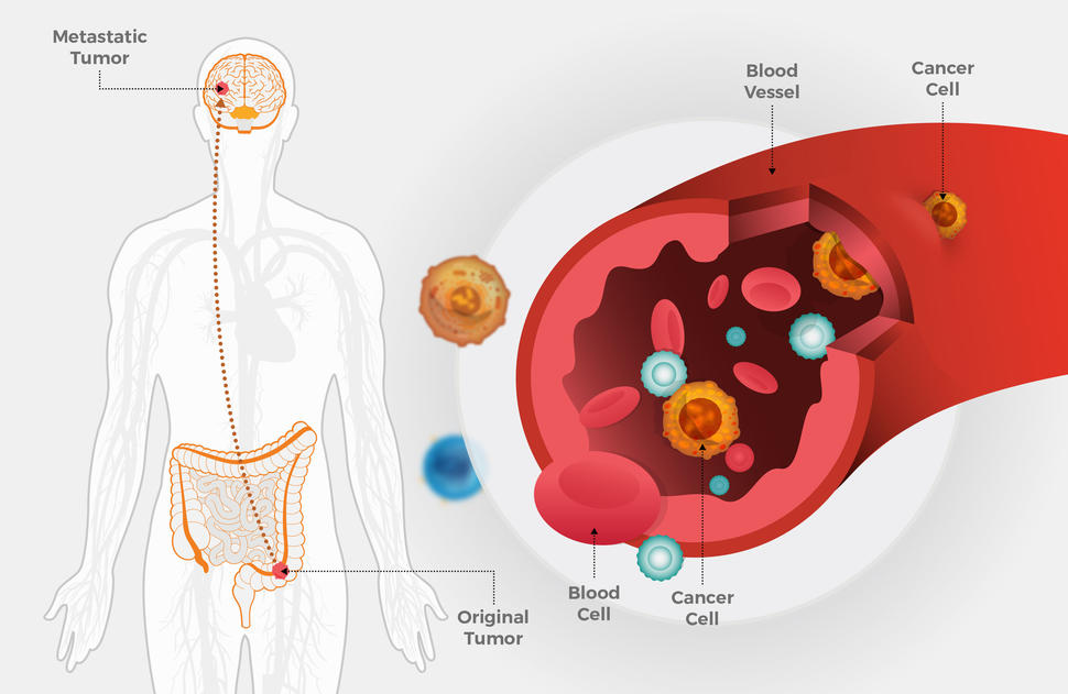 Metastatic cancer known as,