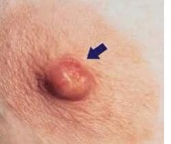 papilloma duttale sintomi colorectal cancer red meat