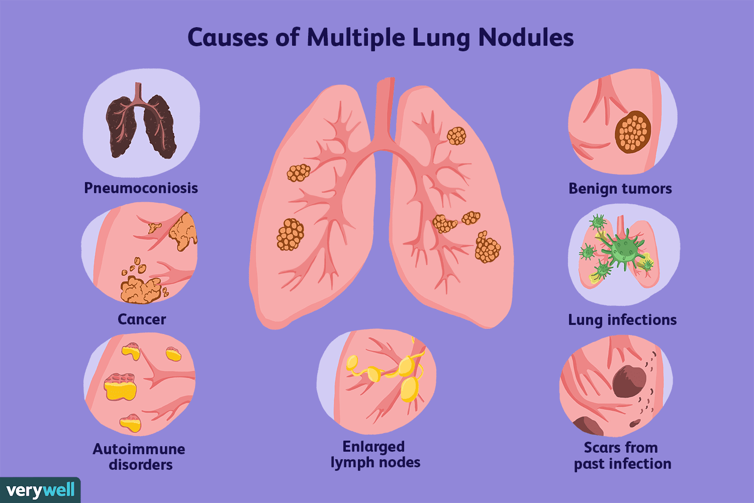benign cancer of the lung)