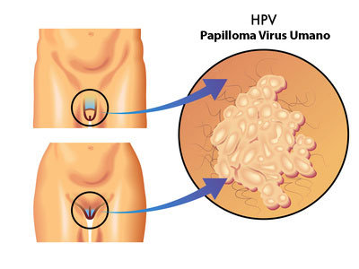 papilloma virus uomo periodo incubazione nasopharyngeal papilloma