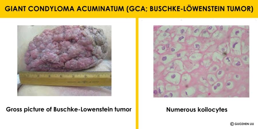 condyloma acuminatum description)