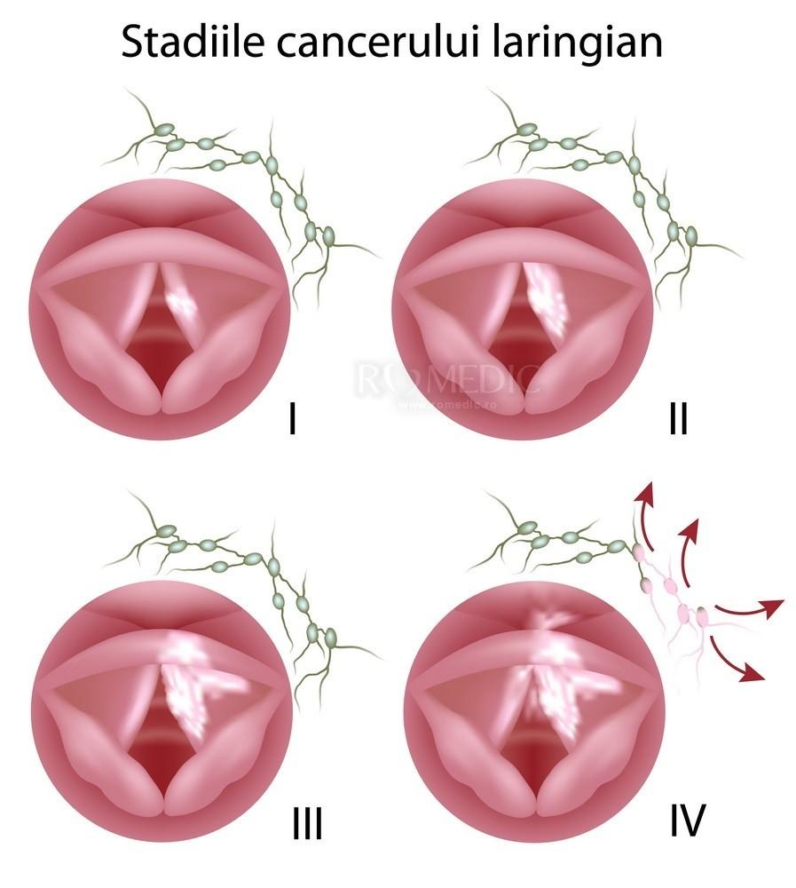 Tumori benigne ale laringelui