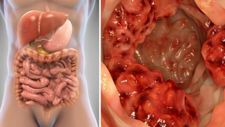 simptomele cancerului caecumului