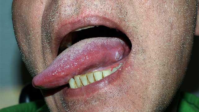 hpv cancer base of tongue margele negre