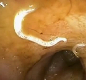 Crevni paraziti kod macaka Paraziti kod macaka lecenje