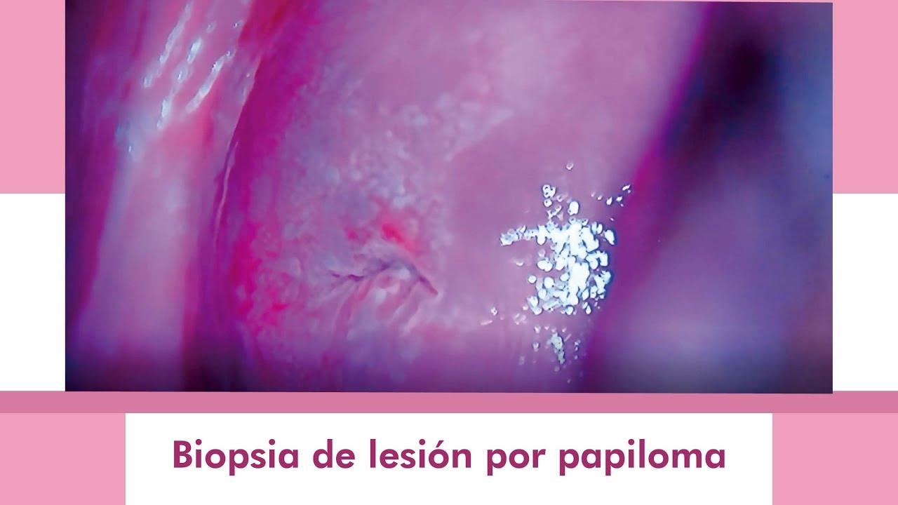 virus del papiloma biopsia care înlătură verucile pe limbă