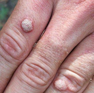 Negii se tratează NUMAI la dermatolog
