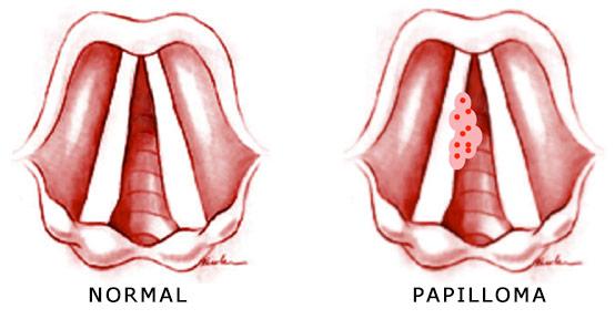 papilloma uvula cancer