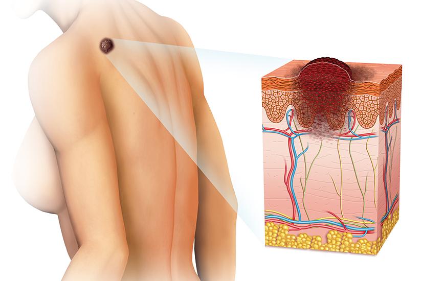 enterobius vermicularis objawy
