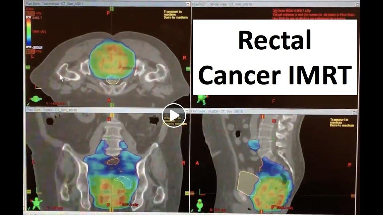 rectal cancer vmat