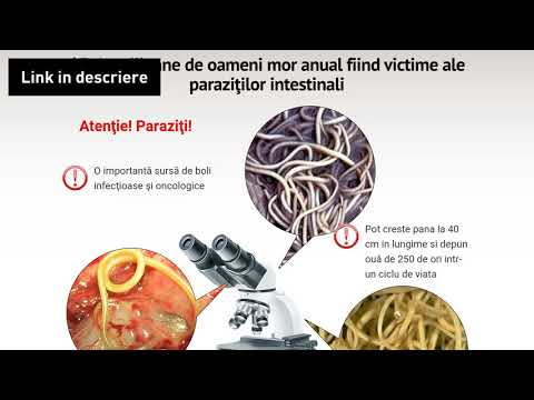 Helminți: tratament, simptome, diagnostic, prevenire - Boli și condiții - 2020