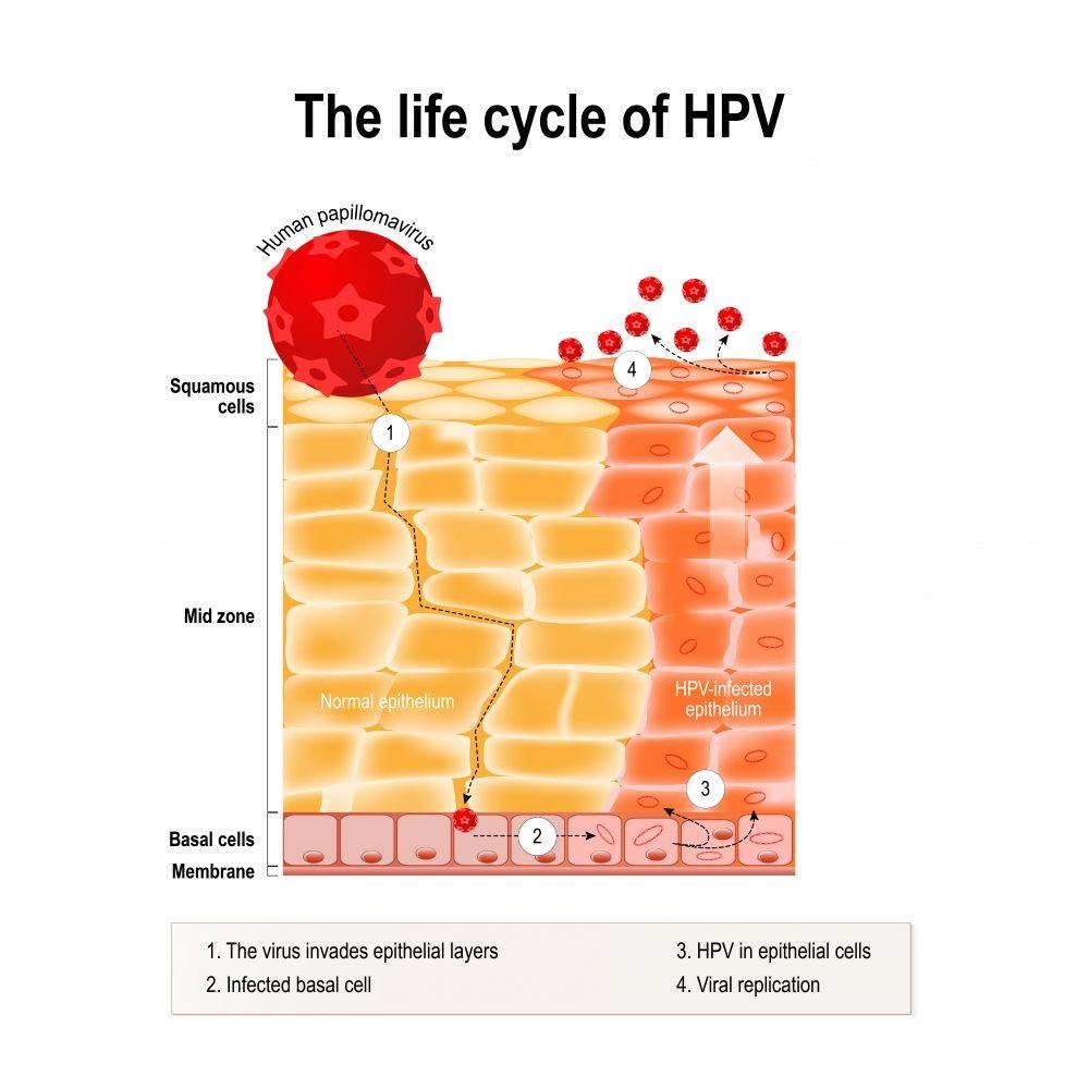 papillomavirus infection incubation period condiloamele au devenit albe ce înseamnă