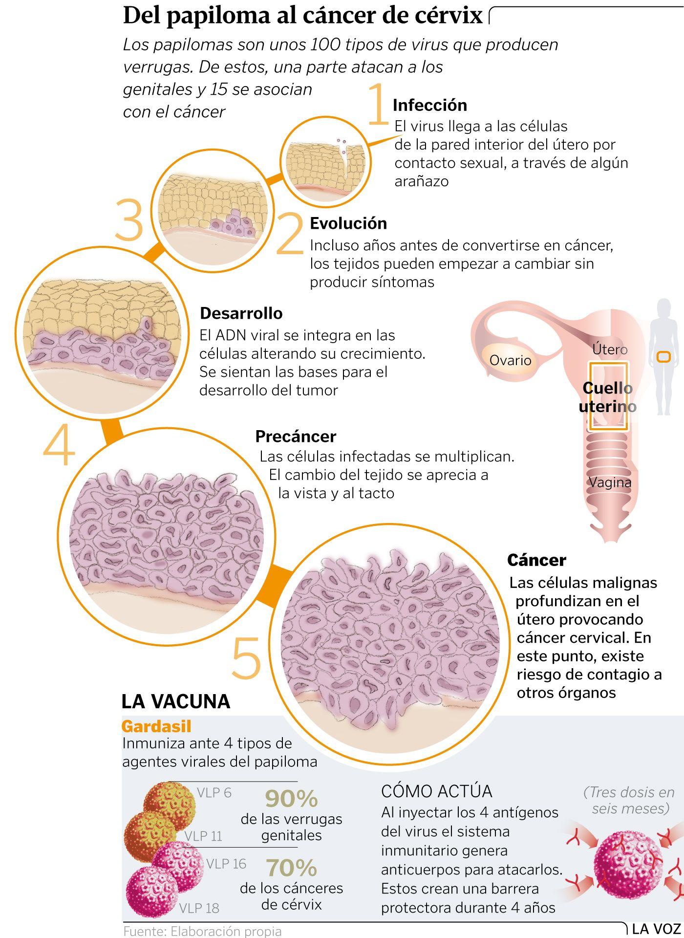 papiloma verrugas cancer
