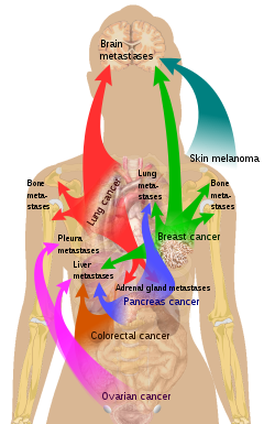 metastatic cancer known as