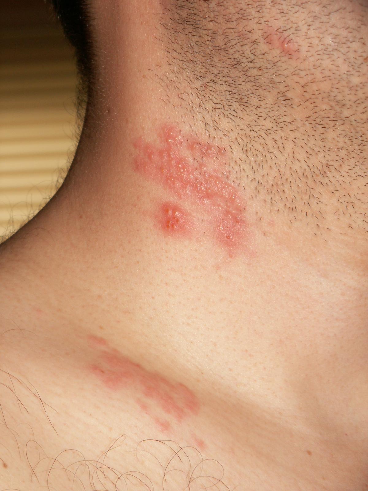 wart virus on neck