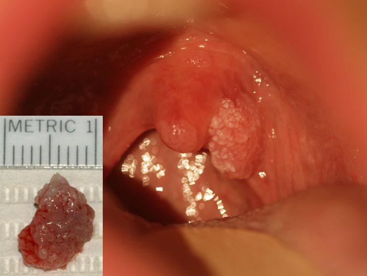 inverted papilloma bladder histopathology