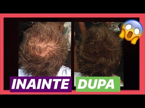 căderea părului de vierme