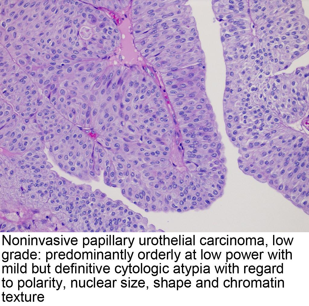 papillary urothelial mean