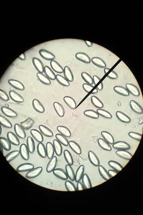 oxiuros tratamiento argentina hpv or human papilloma virus