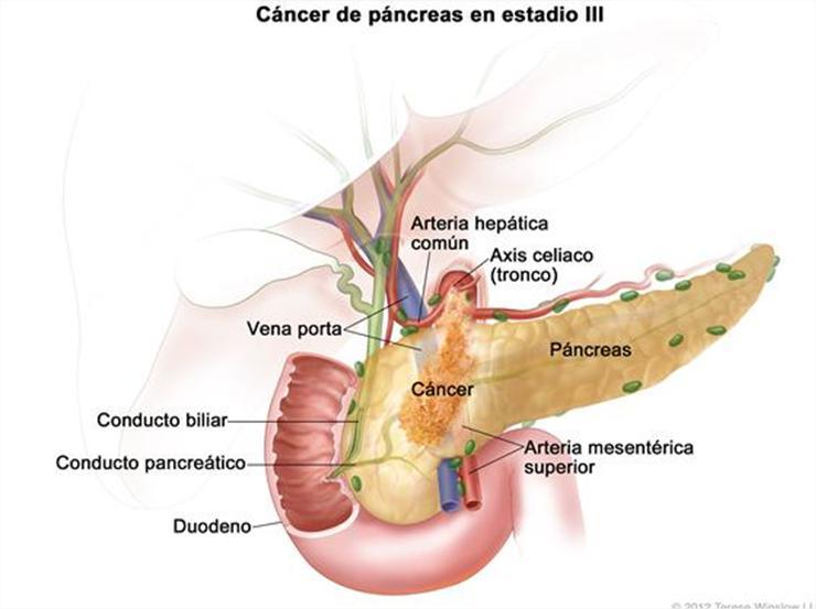 Subiecte Gastro Hepato 1 - [DOC Document]