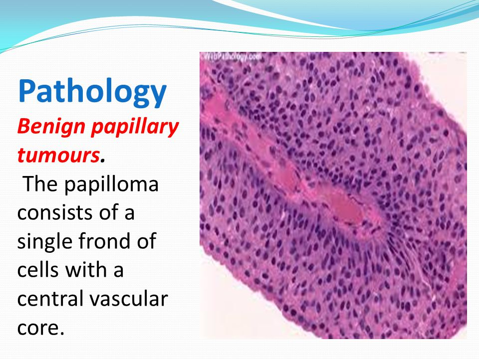definition of urinary bladder papilloma