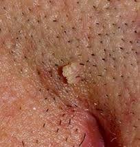 paraziti cuterebra sub piele